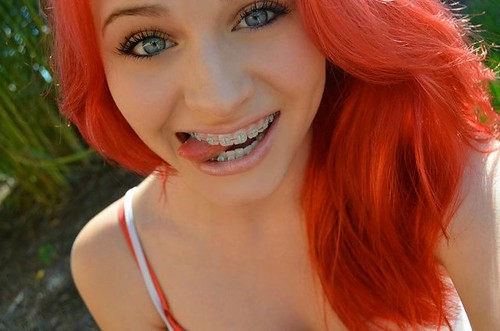 with braces Redheads