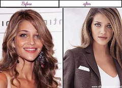 Photos of  Ana Beatriz Barros Appears To Be Like Right After Plastic Surgery 2014