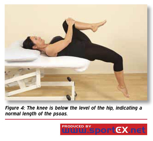 The knee is below the level of the hip, indicating a normal length of the psoas. | by sportEX journals