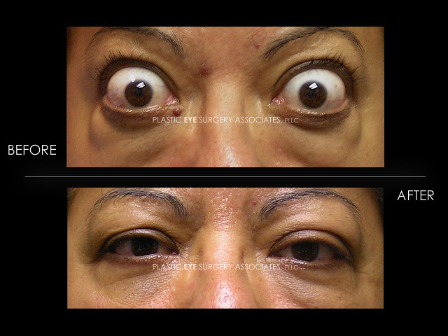 217 Thyroid Eye Disease With Bulging Eyes Proptosis Or Ex Flickr