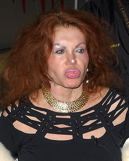 Jackie Stallone After Surgery | by celebrityabc