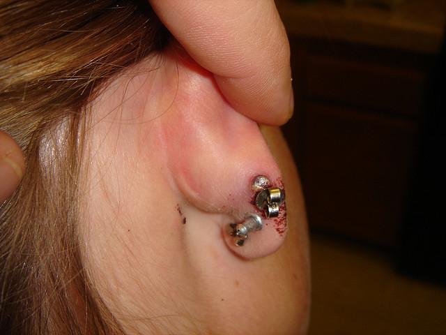 Cartilage Ear Piercing Infection | 284837929_fec1571377_z  B