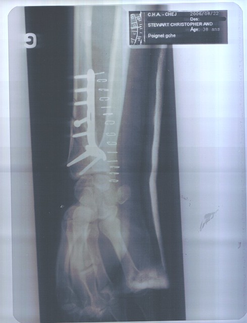 Fracture : metal plate I