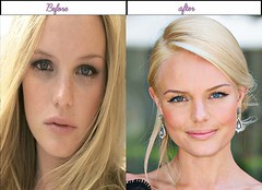 Real Life Pictures Of Kate Bosworth Immediately After And Ahead Of Plastic Surgery