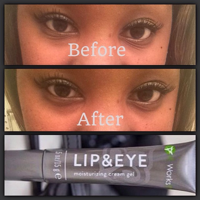 Look At These Results Our Lip Eye Cream Is Incredible Flickr