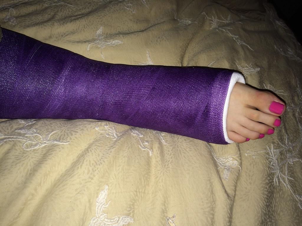 broken ankle purple cast | pink toes | Cast Guy | Flickr