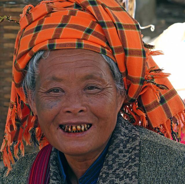 Les dents au bétel
