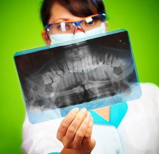 Fogászati röntgen segítégével fel tudjuk mérni a fog nem látható állapotát.