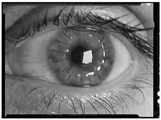 DALK cornea transplant