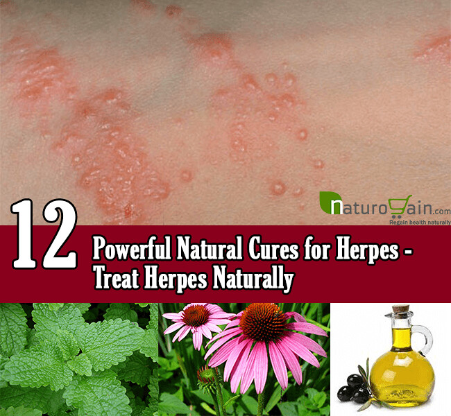 12 Powerful Natural Cures for Herpes | Herpes simplex virus … | Flickr