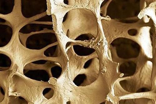 La Osteoporosis afecta a hombres y mujeres http://t.co/O38Vnv6jYz   by German Tenorio