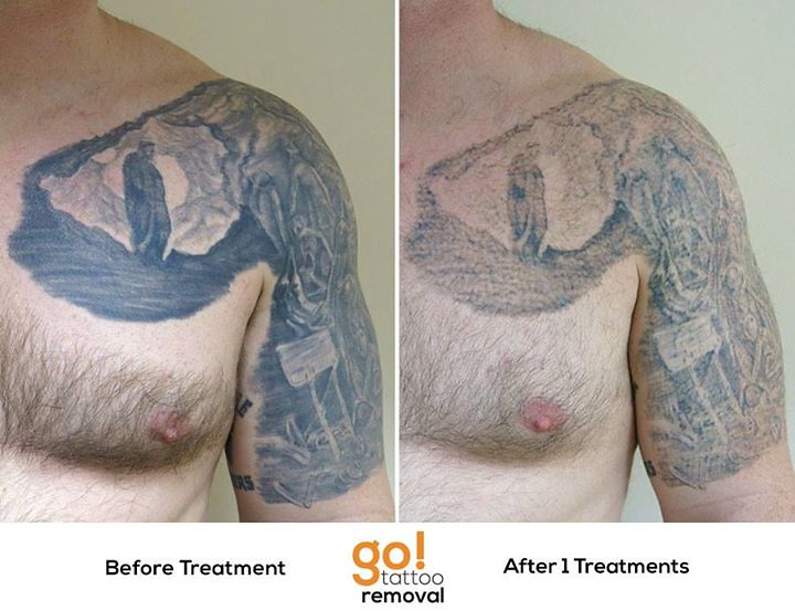 Laser Tattoo Removal | This chest plate and half sleeve was … | Flickr