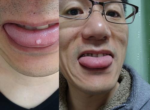 舌のできものを治療した