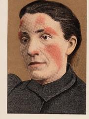 This image is taken from Page 247 of Précis iconographique des maladies de la peau