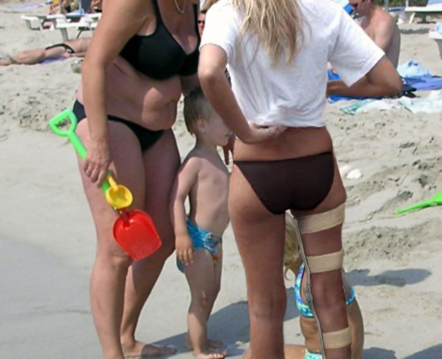 Young woman wearing a legbrace on the beach, probably paralyzed below the hip....