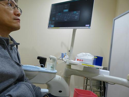 口腔外科で舌のできものを切除