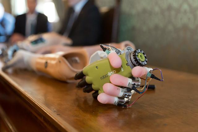 Mano bionica. Dalle origini della ricerca alle sperimentazioni su soggetti amputati