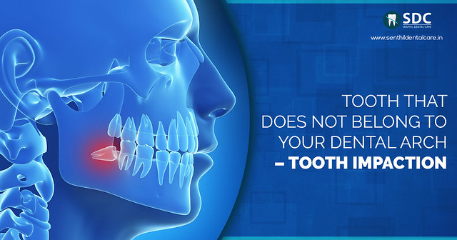 Tooth Removal Cost in Chennai
