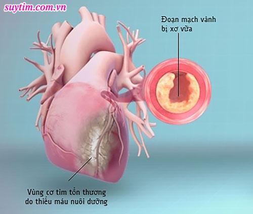 Phát hiện sớm triệu chứng thiếu máu cơ tim giúp người bệnh tăng cơ hội chữa trị