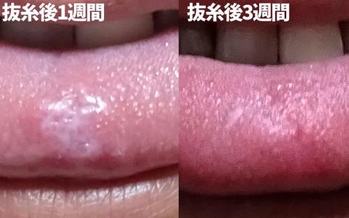 舌のできもの 治療後
