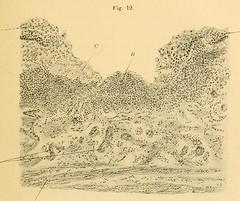This image is taken from Page 47 of Vorlesungen über die Krankheiten der Luftröhre
