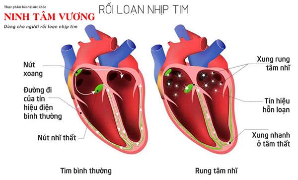 Rối loạn nhịp tim là một trong các nguyên nhân chính khiến tim đập nhanh