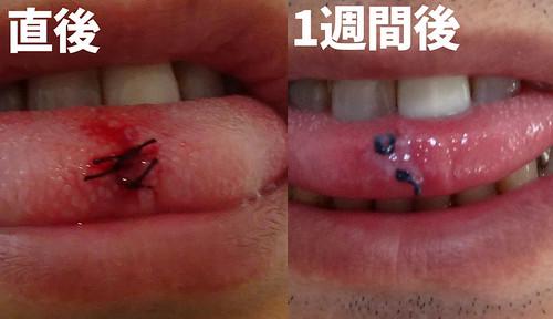 舌のできもの 縫合部分