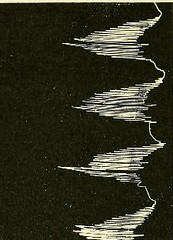 This image is taken from Page 134 of The physiology and pathology of the cerebral circulation; an experimental research