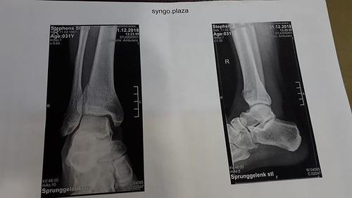 broken ankle | by Plymtree Adventure Club
