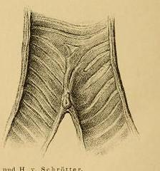 This image is taken from Page 4 of Vorlesungen über die Krankheiten der Luftröhre
