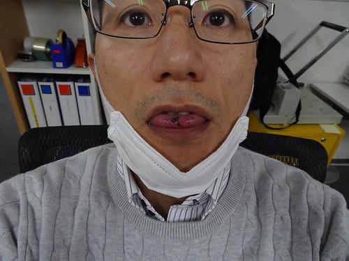 舌のできものを切除するも仕事は普通