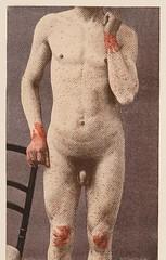 This image is taken from Page 175 of Précis iconographique des maladies de la peau