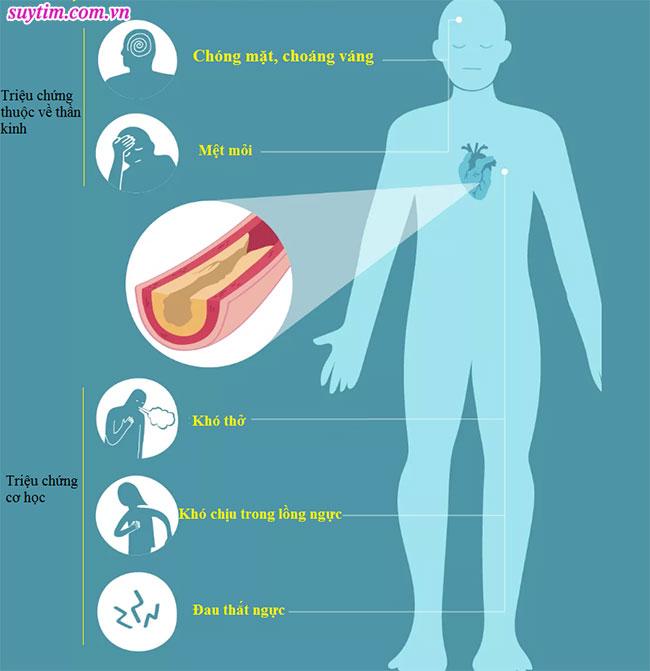 Triệu chứng bệnh mạch vành