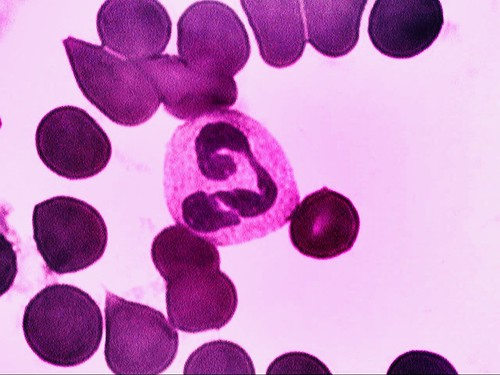 Segmented neutrophil | by Biomedicinskanalytiker.org
