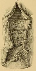 This image is taken from Page 150 of Vorlesungen über die Krankheiten der Luftröhre