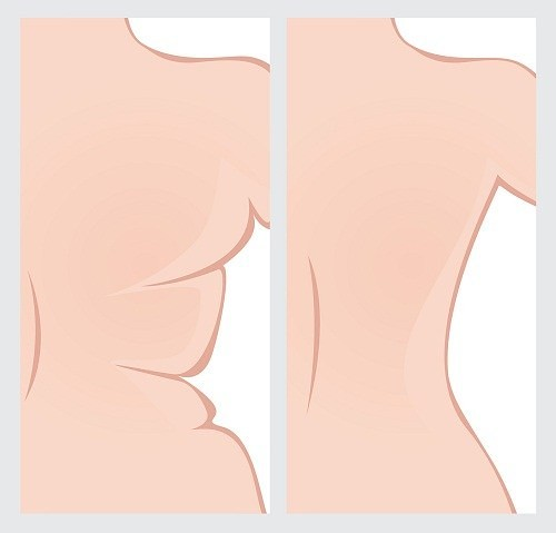 6 Exercises to Get Rid of Bra Fat | by authorityweightloss