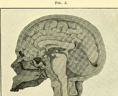 This image is taken from Page 25 of The physiology and pathology of the cerebral circulation; an experimental research