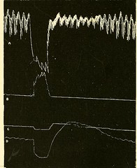 This image is taken from Page 52 of The physiology and pathology of the cerebral circulation; an experimental research