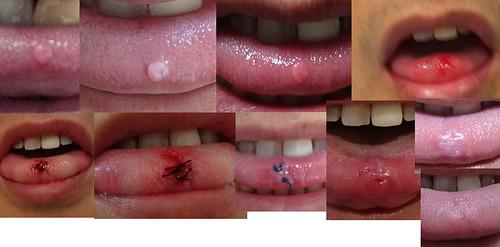 舌のできものの治療