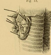 This image is taken from Page 30 of Vorlesungen über die Krankheiten der Luftröhre