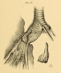 This image is taken from Page 75 of Vorlesungen über die Krankheiten der Luftröhre