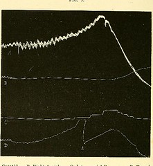 This image is taken from Page 56 of The physiology and pathology of the cerebral circulation; an experimental research