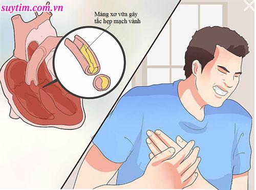 Triệu chứng bệnh mạch vành không phải lúc nào cũng là đau ngực trái