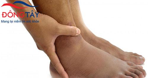 Phù chân, mắt cá chân là dấu hiệu hở van 3 lá điển hình