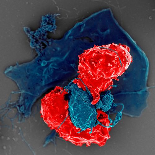 T Regulatory Cells