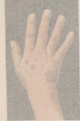 This image is taken from Précis iconographique des maladies de la peau