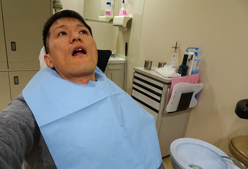 舌のできものの切除手術