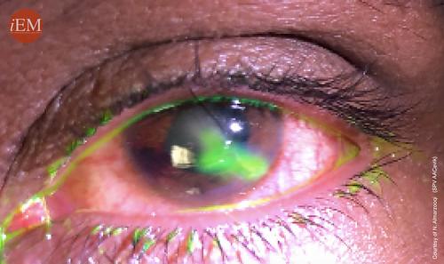 837 - eye penetran trauma 3   by iem-student.org
