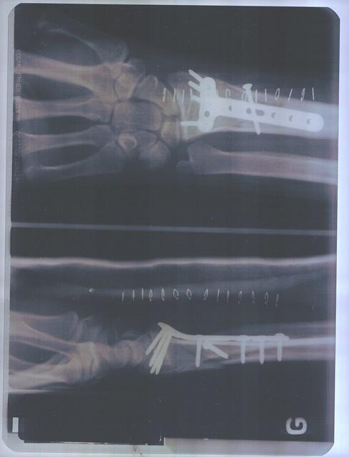 Fracture : metal plate II