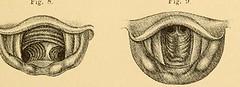 This image is taken from Page 13 of Vorlesungen über die Krankheiten der Luftröhre